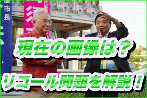 高須院長の現在の画像がやばい!秘書のリコール問題を簡単に解説!1